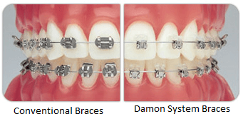 Damon System Braces