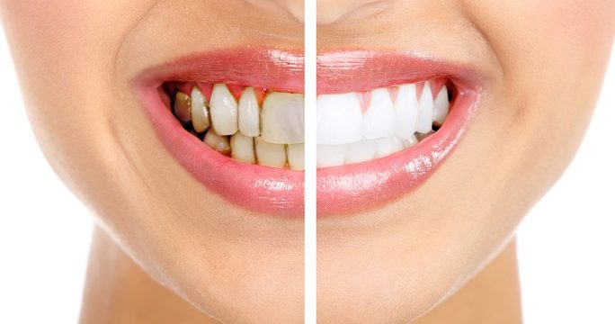 Woman with gum disease before and after
